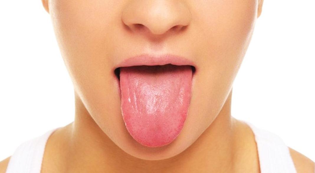 Cómo limpiar la lengua