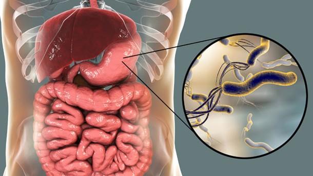 Eliminar naturalmente a la Helicobacter Pylori